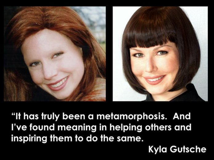 After surviving ovarian cancer at the age of 26, Kyla Gutsche was left without eyebrows. After undergoing two unsuccessful cosmetic procedures, Kyla decided to apply her own visual arts background so that others could avoid similar experiences and have the renewed confidence to face and enjoy the world. (Graphic: Cosmetic Transformations)