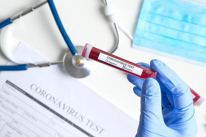 "A medical professional holding a vial marked ""Coronavirus Test"" with ""Positive"" checked to indicate a positive COVID-19 test. (Stock photo)"