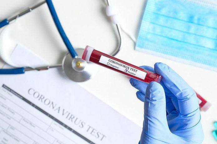 Positive coronavirus test result stock photo
